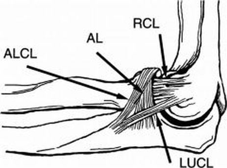Lateral Ulnar Collateral Reconstruction